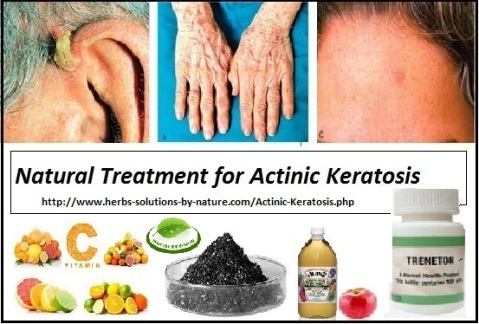 Treneton, Herbal Treatment for Actinic Keratosis